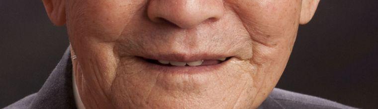 0 수정전. 치아삽입, 입술보정.jpg